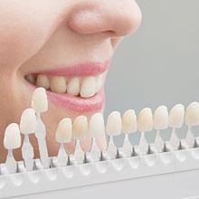 Auswahl der richtigen Zahnfarbe